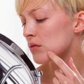 Пигментные пятна на коже - лечить или не лечить?